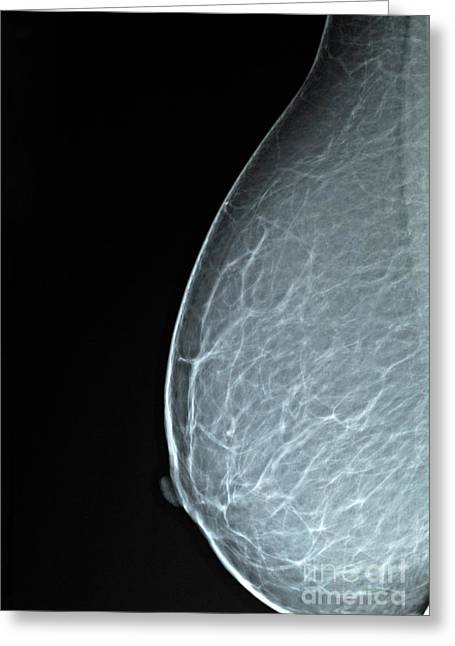 Body Conscious Greeting Cards - Mammograms X-ray Greeting Card by Sami Sarkis