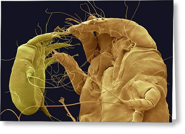 Scanning Electron Micrograph Greeting Cards - Mange Mites, Sem Greeting Card by Steve Gschmeissner