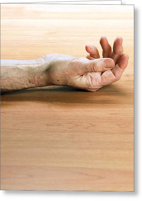 Man's Arm Laying On A Floor Greeting Card by Tony Mcconnell