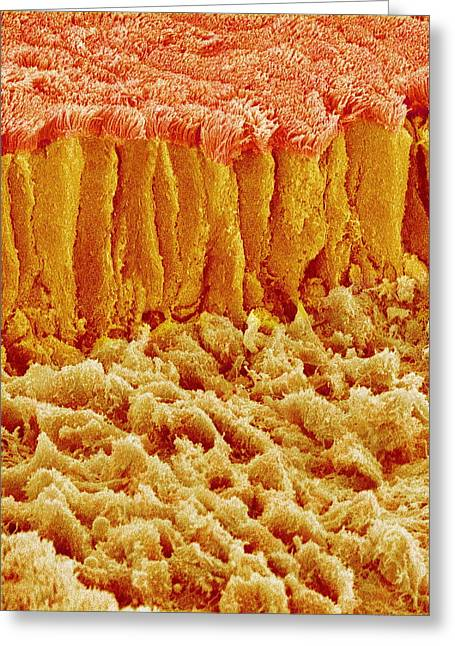 Microvillus Greeting Cards - Microvilli In The Intestine, Sem Greeting Card by Susumu Nishinaga