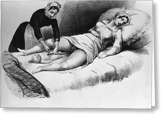 Pregnancy Greeting Cards - Midwife Cutting Umbilical Cord, 1850 Greeting Card by Science Source