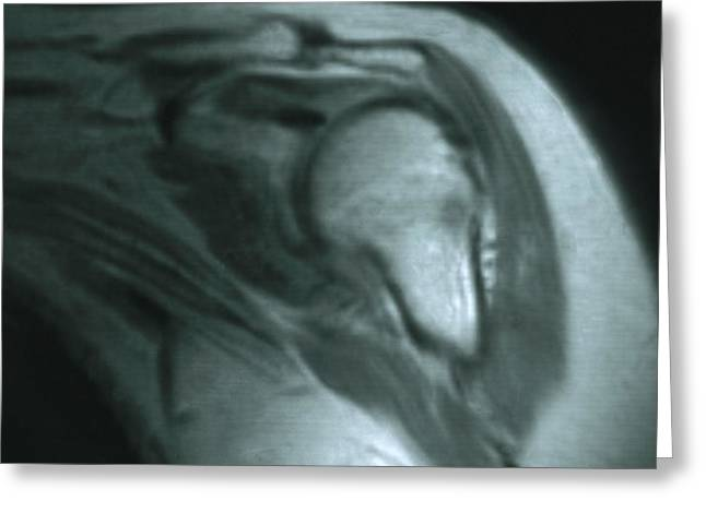 Mri Of Shoulder With Impingement Greeting Card by Science Source