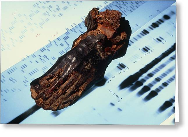 Mummies Greeting Cards - Mummified Foot Resting On Dna Autoradiograms Greeting Card by Volker Steger