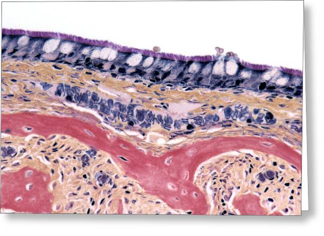 Goblet Greeting Cards - Nasal Lining, Light Micrograph Greeting Card by Steve Gschmeissner