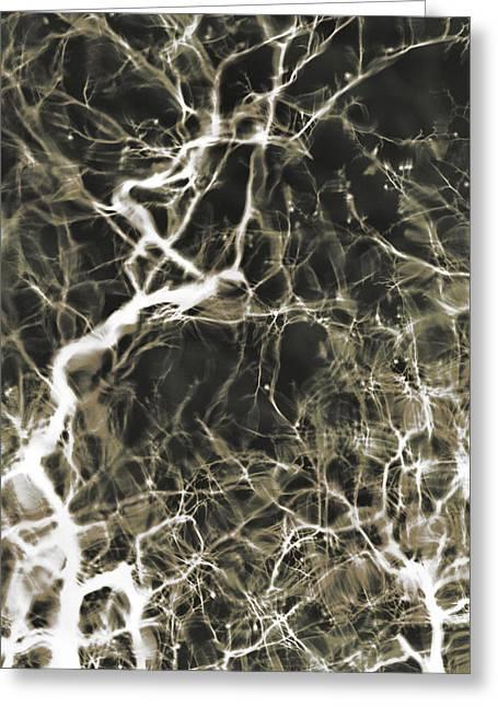 Neurosurgeon Greeting Cards - Neurons Firing Greeting Card by Christopher Kulfan
