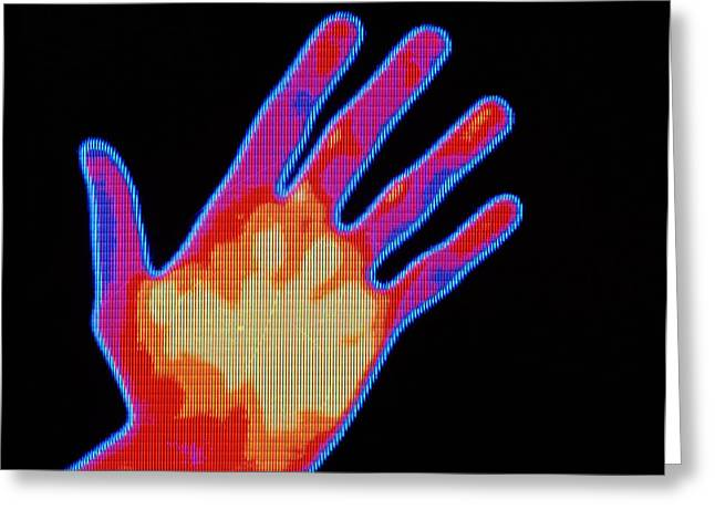 Thermograph Greeting Cards - Non-smoker Hand Thermogram Greeting Card by Pasieka