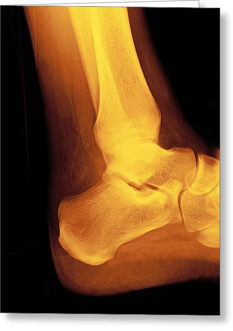 Normal Ankle Joint, X-ray Greeting Card by Miriam Maslo