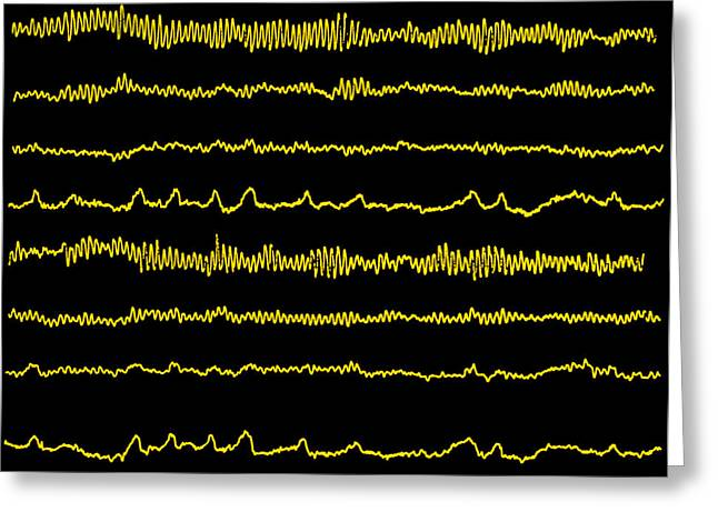 Eeg Greeting Cards - Normal Eeg Read Out Of The Brains Alpha Waves Greeting Card by