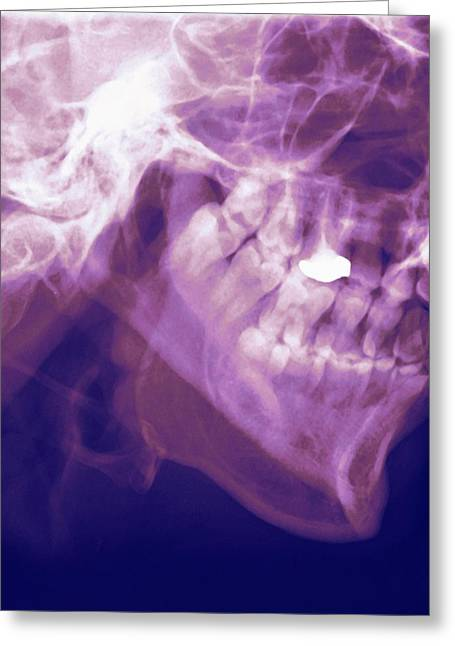 Mandible Greeting Cards - Normal Lower Jaw, X-ray Greeting Card by Miriam Maslo