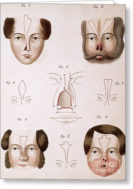 Manual Greeting Cards - Nose Reconstruction, 1815 Medical Text Greeting Card by Science Source