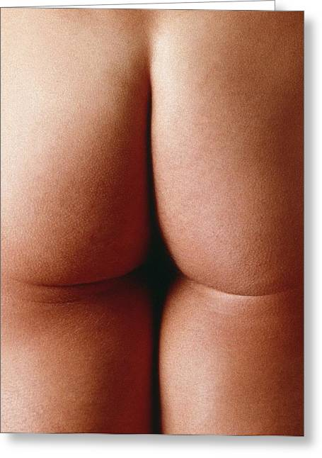 Male Buttocks Greeting Cards - Nude Mans Buttocks Greeting Card by Cristina Pedrazzini
