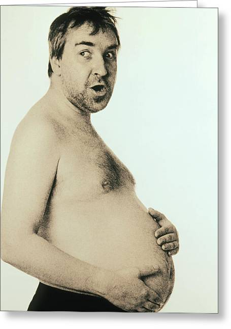 Obesity Greeting Cards - Obese Man Holding His Bare Belly Greeting Card by Cristina Pedrazzini