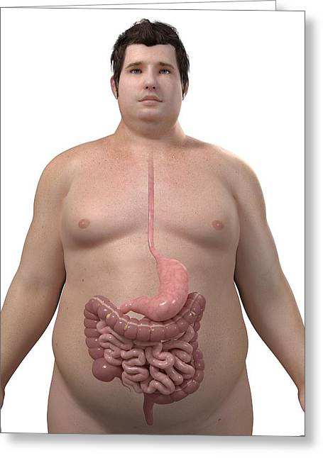 Gi Greeting Cards - Obese Mans Digestive System, Artwork Greeting Card by Sciepro