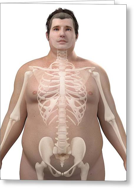 Obese Greeting Cards - Obese Mans Skeleton, Artwork Greeting Card by Sciepro