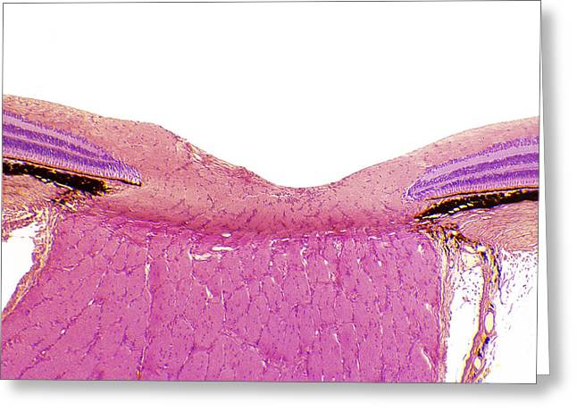 Optic Nerve, Light Micrograph Greeting Card by Steve Gschmeissner