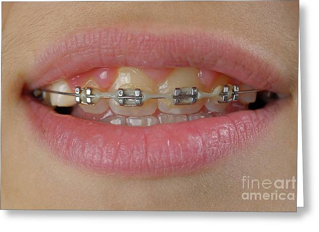 Adolescence Greeting Cards - Orthodontic braces on teeth Greeting Card by Sami Sarkis