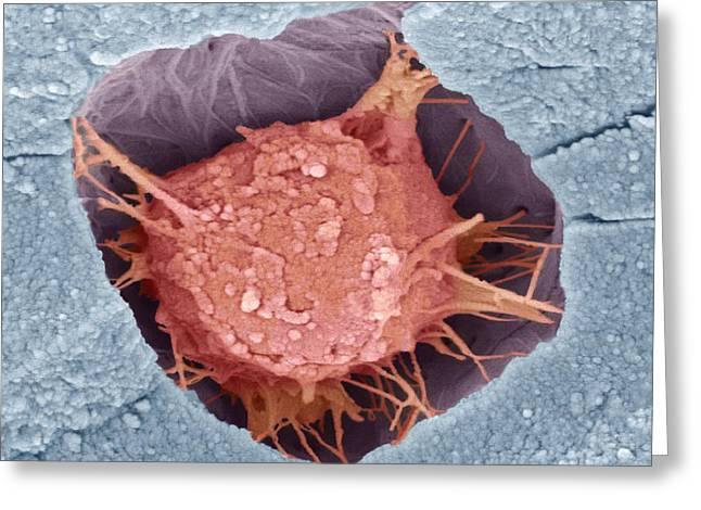 False-colour Greeting Cards - Osteoblast Bone Cell, Sem Greeting Card by Steve Gschmeissner