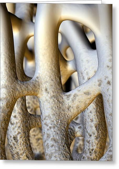 Weak Disorder Greeting Cards - Osteoporosis Greeting Card by David Mack