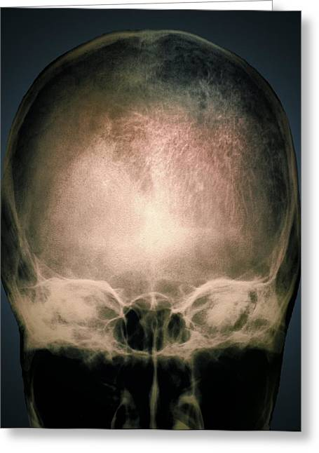 Osteology Greeting Cards - Osteoporosis In The Skull, X-ray Greeting Card by Zephyr