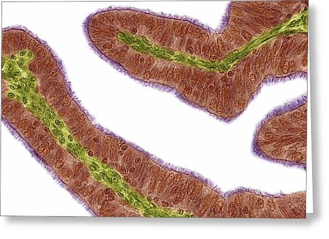 Mucosa Greeting Cards - Oviduct Mucosal Folds, Light Micrograph Greeting Card by Steve Gschmeissner