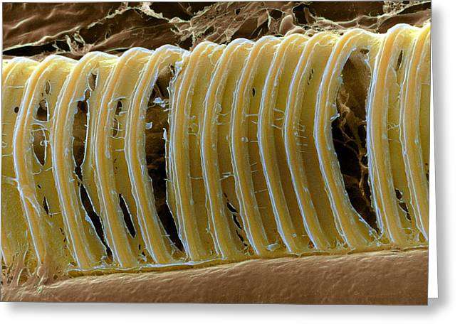 Strengthen Photographs Greeting Cards - Pea Plant Xylem Greeting Card by Dr Jeremy Burgess