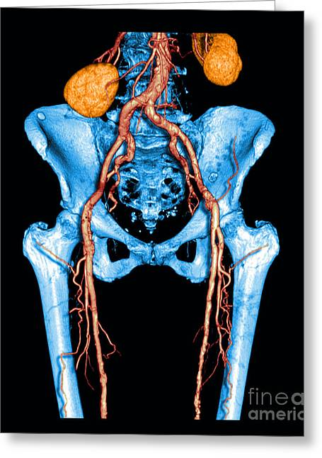 Medical Medical Imaging Greeting Cards - Pelvis And Upper Legs Greeting Card by Medical Body Scans
