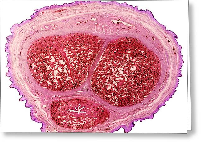 Erection Greeting Cards - Penis Section, Light Micrograph Greeting Card by Steve Gschmeissner