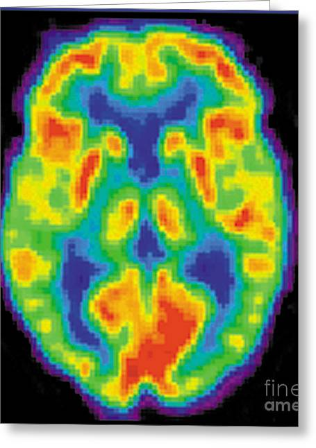 Medical Medical Imaging Greeting Cards - Pet Scan Of 20-year-old Brain Greeting Card by Science Source