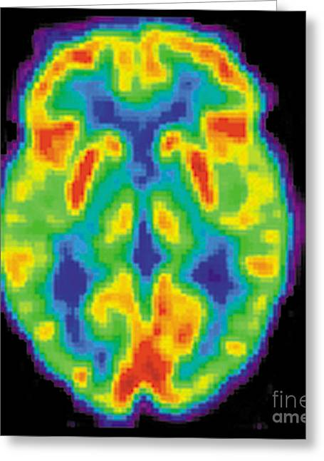Diagnostic Imaging Greeting Cards - Pet Scan Of 80-year-old Brain, 2 Of 2 Greeting Card by Science Source