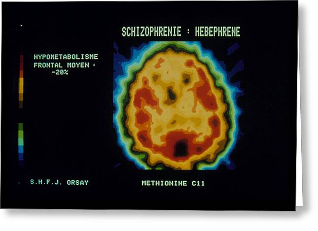 Mental Condition Greeting Cards - Pet Scan Of Brain Of Person With Schizophrenia Greeting Card by Cnri Schizophrenia. Coloured Pet (positron Emission