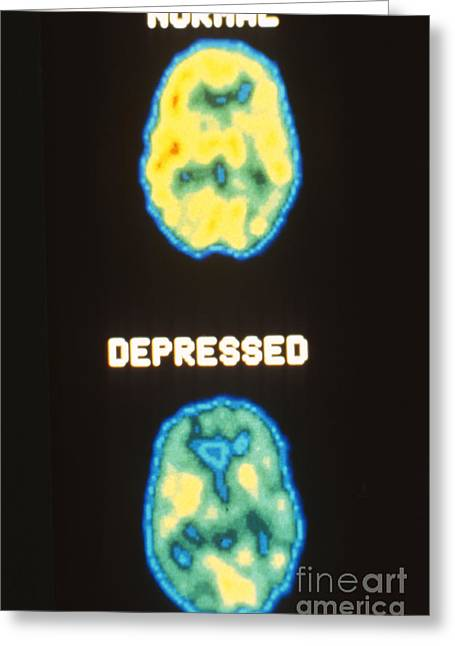Mental Condition Greeting Cards - Pet Scans, Deoxyglucose Study Greeting Card by Science Source