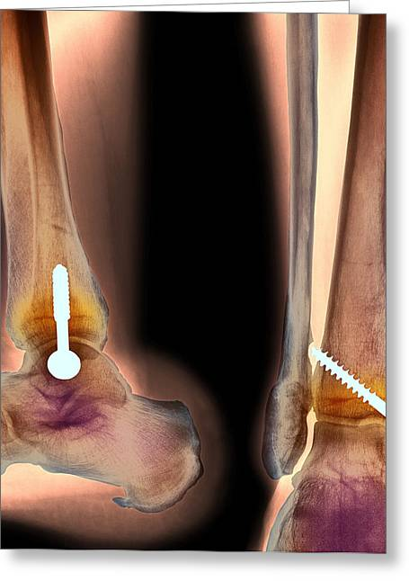 Ankles Greeting Cards - Pinned Ankle Fracture, Two Views, X-ray Greeting Card by