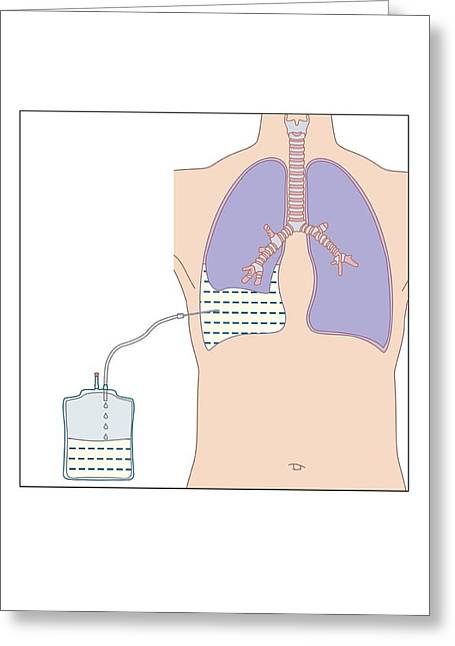 Drain Greeting Cards - Pleural Effusion Treatment, Artwork Greeting Card by Peter Gardiner