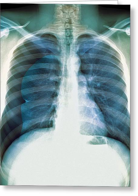 Pneumothorax, X-ray Greeting Card by Du Cane Medical Imaging Ltd
