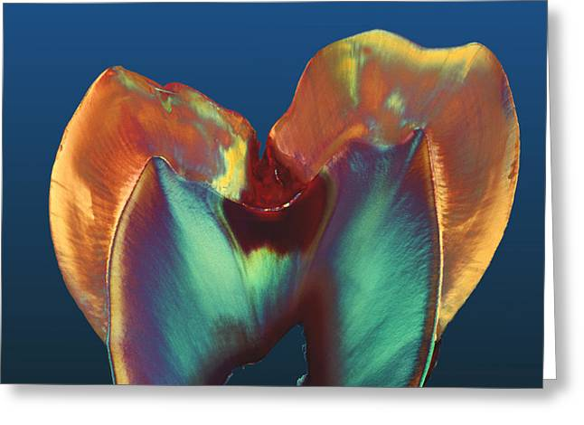 Dentistry Greeting Cards - Polarised Lm Of A Molar Tooth Showing Decay Greeting Card by Volker Steger