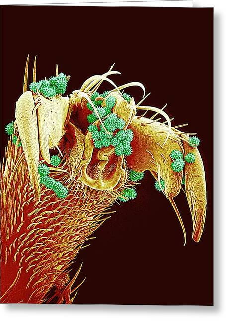 Pollen Greeting Cards - Pollen On A Bees Leg, Sem Greeting Card by Susumu Nishinaga