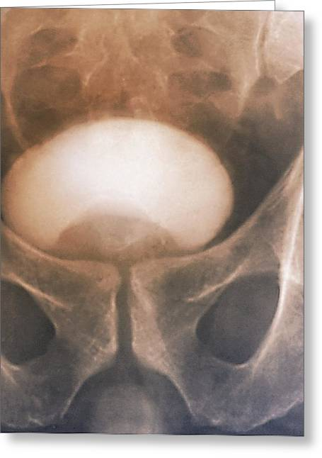 Prostate Disorder, X-ray Urogram Greeting Card by Zephyr