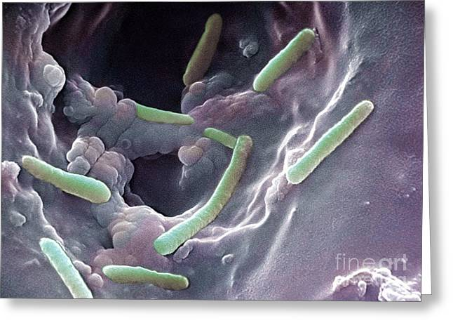 Gram-negative Greeting Cards - Pseudomonas Aeruginosa Greeting Card by Science Source