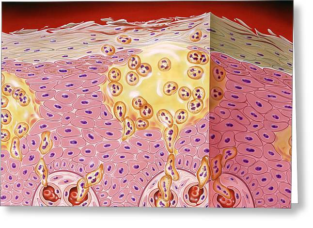Dermatological Greeting Cards - Psoriasis Greeting Card by John Bavosi