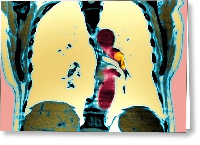 Pulmonary Greeting Cards - Pulmonary Embolism, Ct Scan Greeting Card by Du Cane Medical Imaging Ltd