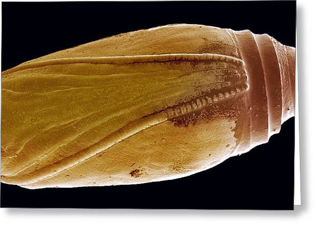 Pupa Greeting Cards - Pupa, Sem Greeting Card by Steve Gschmeissner