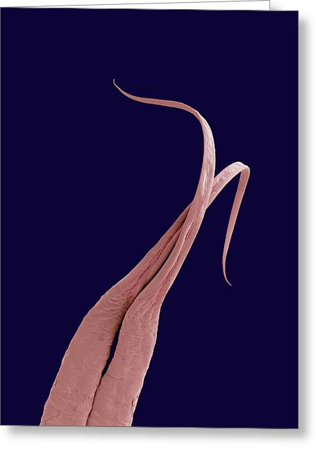 Forked Tongue Greeting Cards - Python Tongue, Sem Greeting Card by Steve Gschmeissner