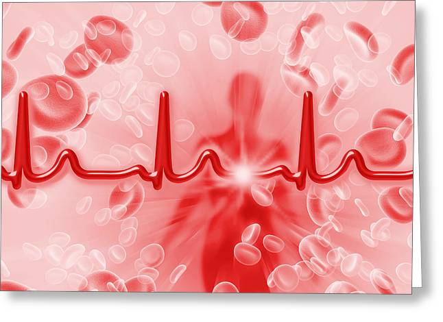 Erythrocytes Greeting Cards - Red Blood Cells And Ecg Greeting Card by Mehau Kulyk