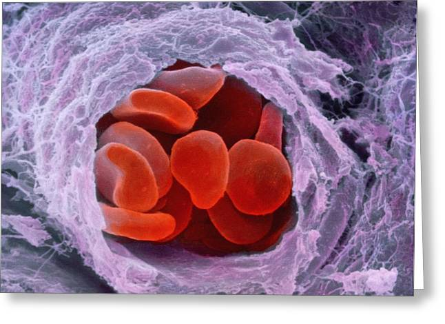 Photos With Red Photographs Greeting Cards - Red Blood Cells Greeting Card by Professors P.m. Motta & S. Correr