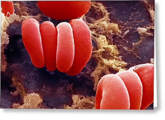 Haematid Greeting Cards - Red Blood Cells, Sem Greeting Card by Ami Images