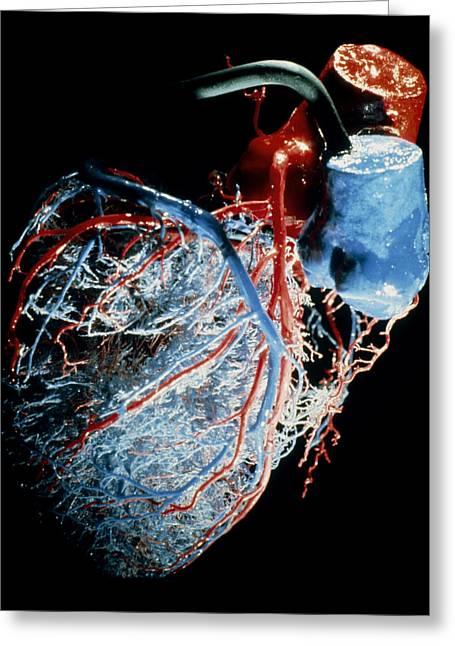 Resin Greeting Cards - Resin Cast Of The Blood Supply To The Heart Greeting Card by .