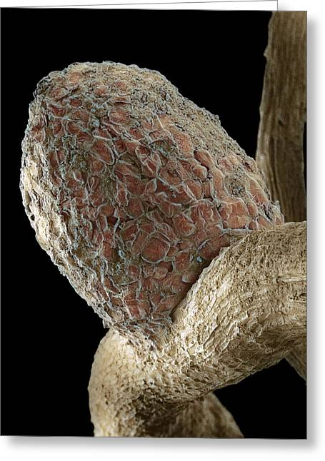 Root Nodule Greeting Card by Dr Jeremy Burgess