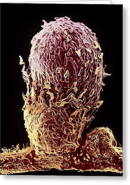 Soil Bacteria Greeting Cards - Root Nodule Of Pea Plant Greeting Card by Dr Jeremy Burgess