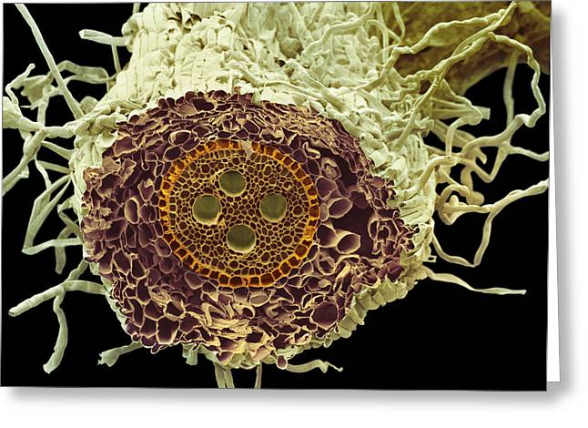 Vascular Bundle Greeting Cards - Root Section, Sem Greeting Card by Steve Gschmeissner