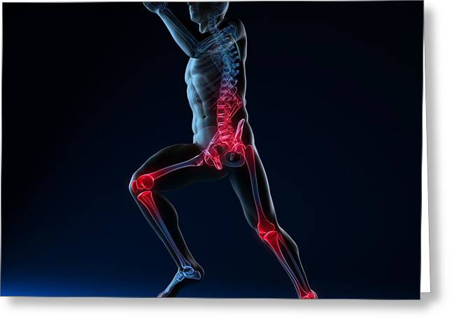 Jogging Greeting Cards - Running Injuries, Conceptual Artwork Greeting Card by Sciepro